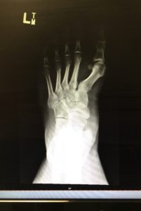 The inside of Joey's foot.
